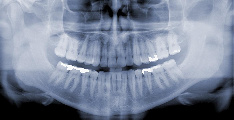 Rontgen zubov Žilina